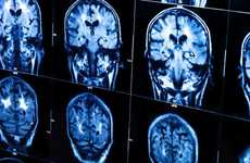 Alzheimers-Predicting Blood Tests