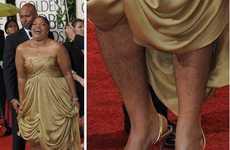 Formal Hairy Legs