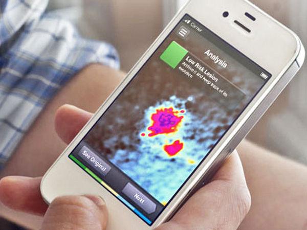 Cancer-Scanning Apps