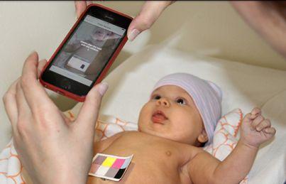 Jaundice-Detecting Apps